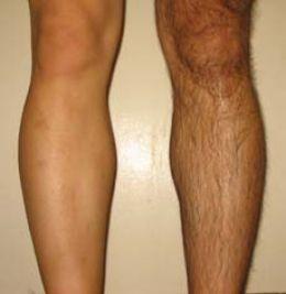 Depilazione gambe uomo
