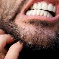 Come Combattere la Fase…Prurito Barba